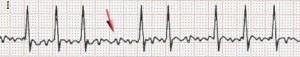 Vorhofflimmern EKG